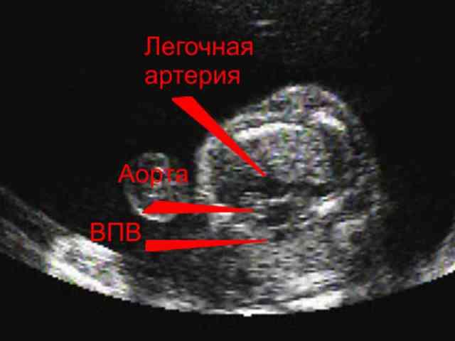 Транспозиция Магистральных Сосудов фото